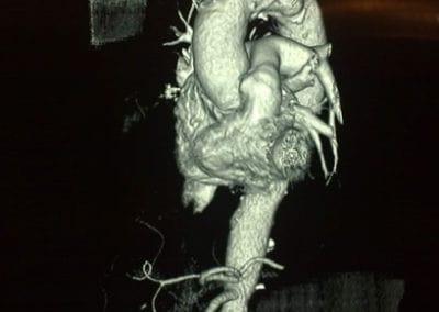 aorta ascendente con angiotac Cirugía cardiovascular en Centro Cardiovascular Málaga