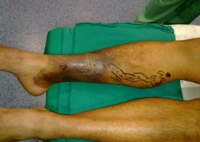 patologia varicosa larga evolucion