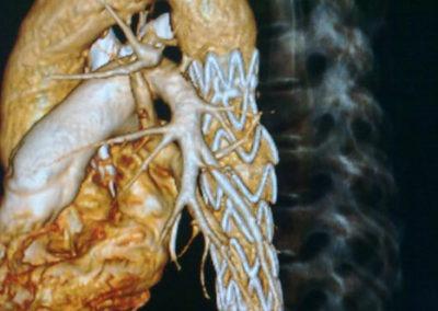 reparacion endovascular